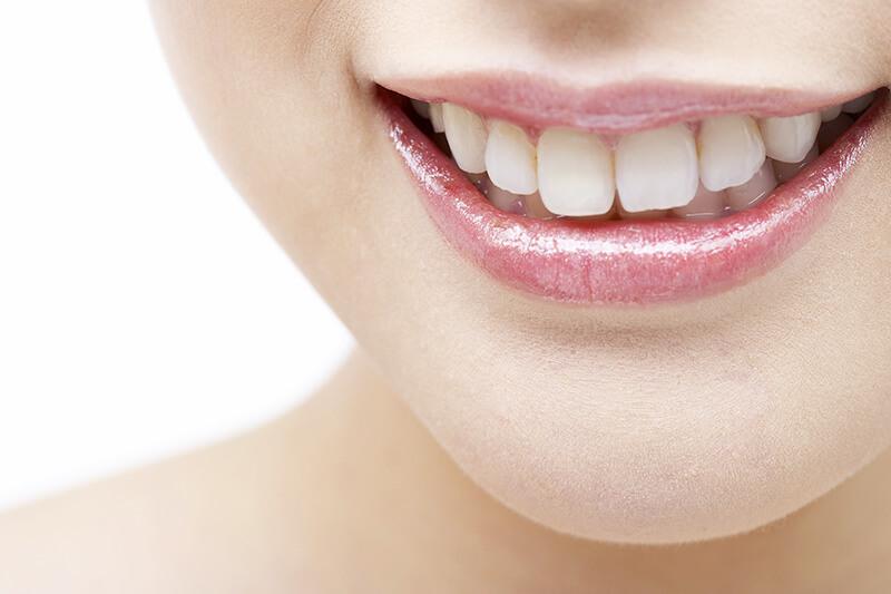 歯を白くしたい方へ ホワイトニング