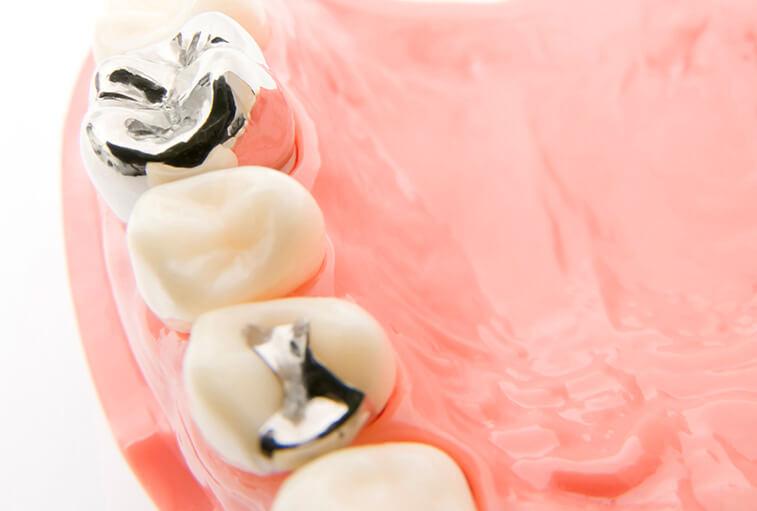 銀歯やすきっ歯が気になる方へ