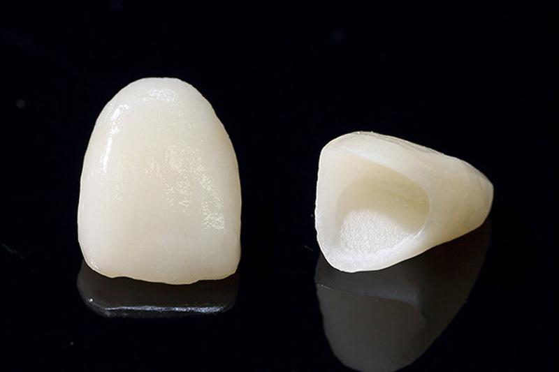 虫歯が深かった場合の治療