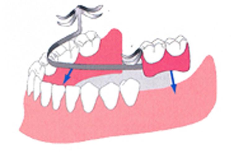 入れ歯の長所